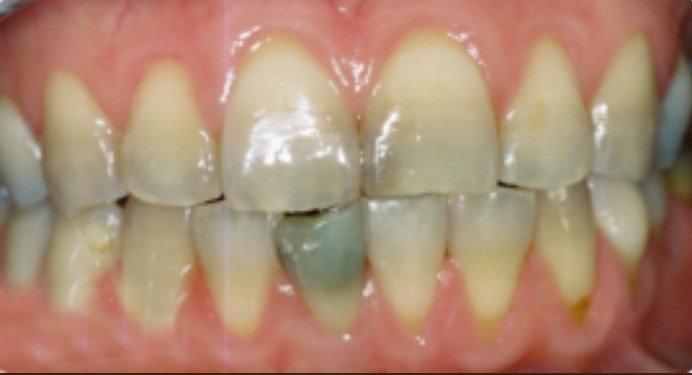 Porcelain crowns, Family and cosmetic dentistry
