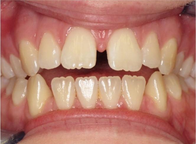 Cosmetic dentistry, Tulsa cosmetic dentistry