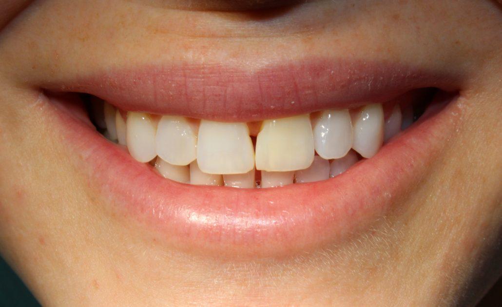 Cosmetic dentist Tulsa, Cost dental veneers