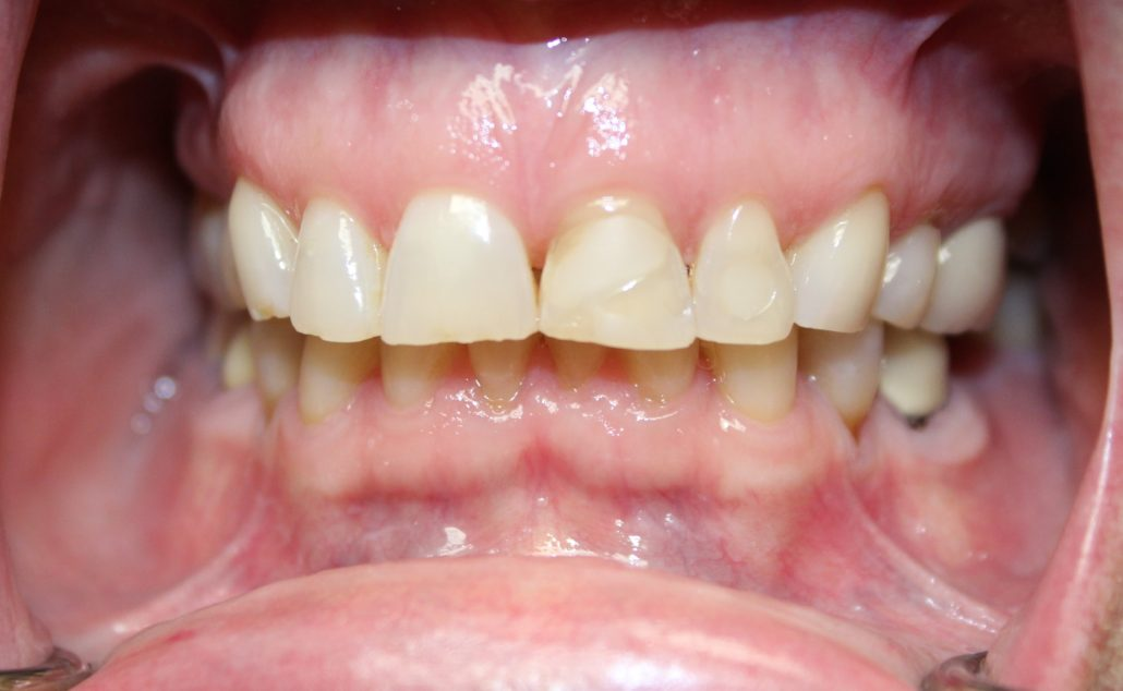 Porcelain crowns, Cosmetic dentistry