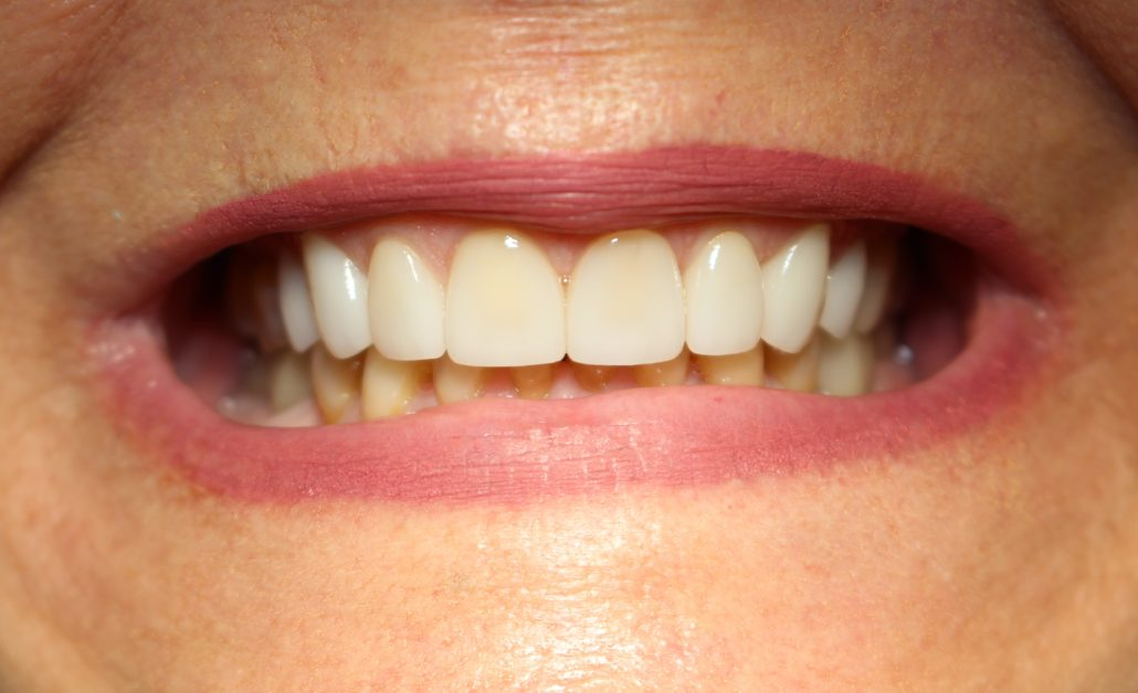 Porcelain crowns, Tulsa cosmetic dentist