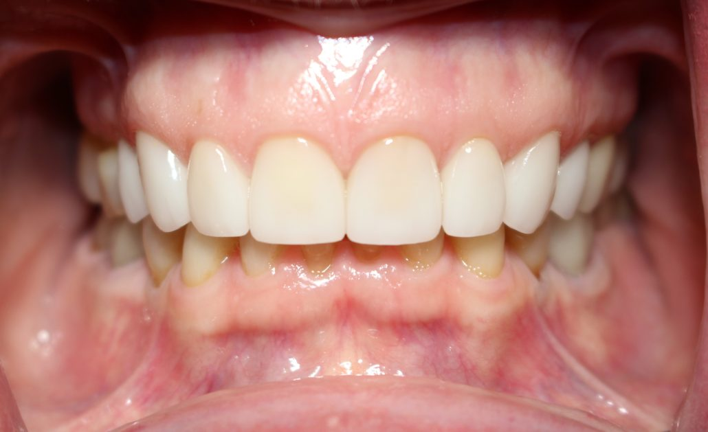 Porcelain crowns, Tulsa cosmetic dentistry