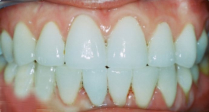Porcelain crowns, Cosmetic dentist Tulsa