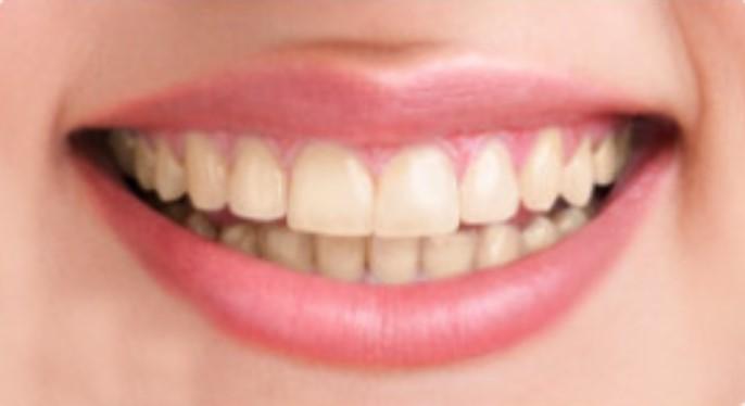 Professional teeth whitening, Cosmetic dentist near me