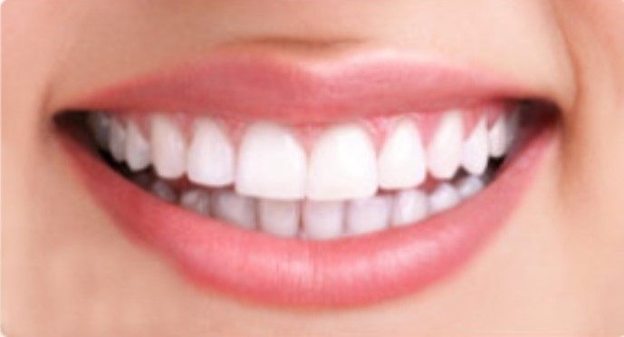 Professional teeth whitening, Tulsa cosmetic dentistry