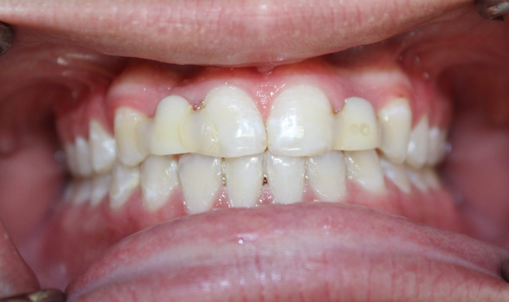 The best dental implants dentist, Dental implants