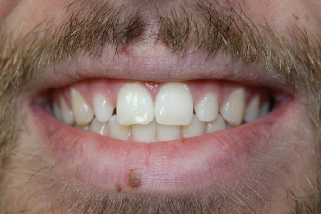 Cosmetic dentistry Tulsa OK, Lumineers dental