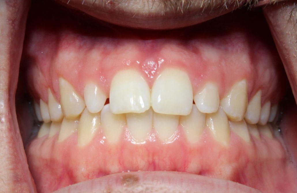 Tulsa dental veneers, Cosmetic dentistry