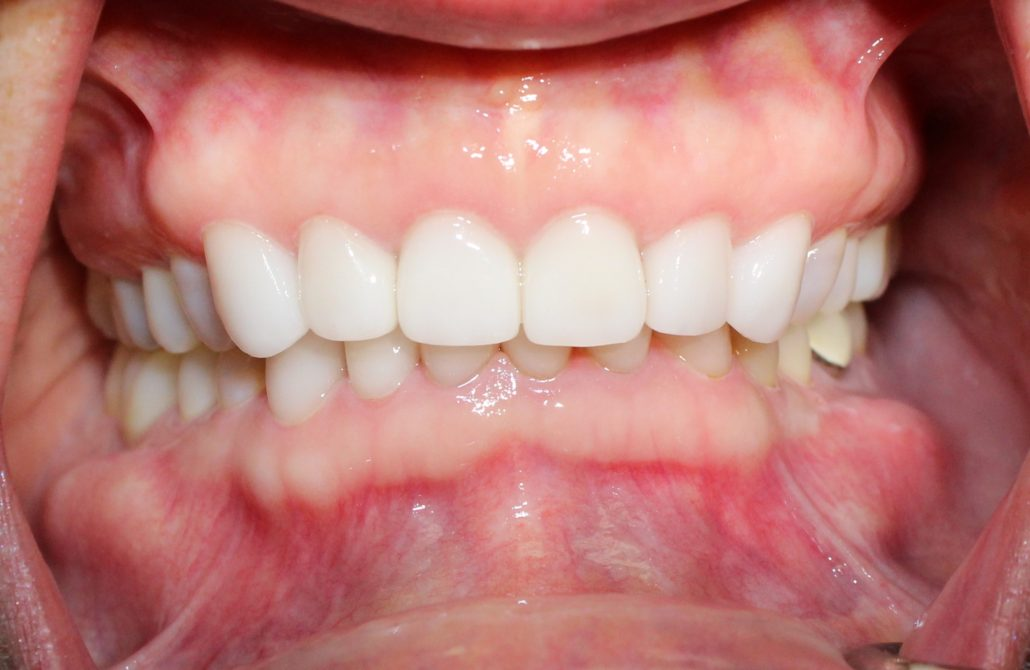 Porcelain crowns, Cosmetic dentist Tulsa
