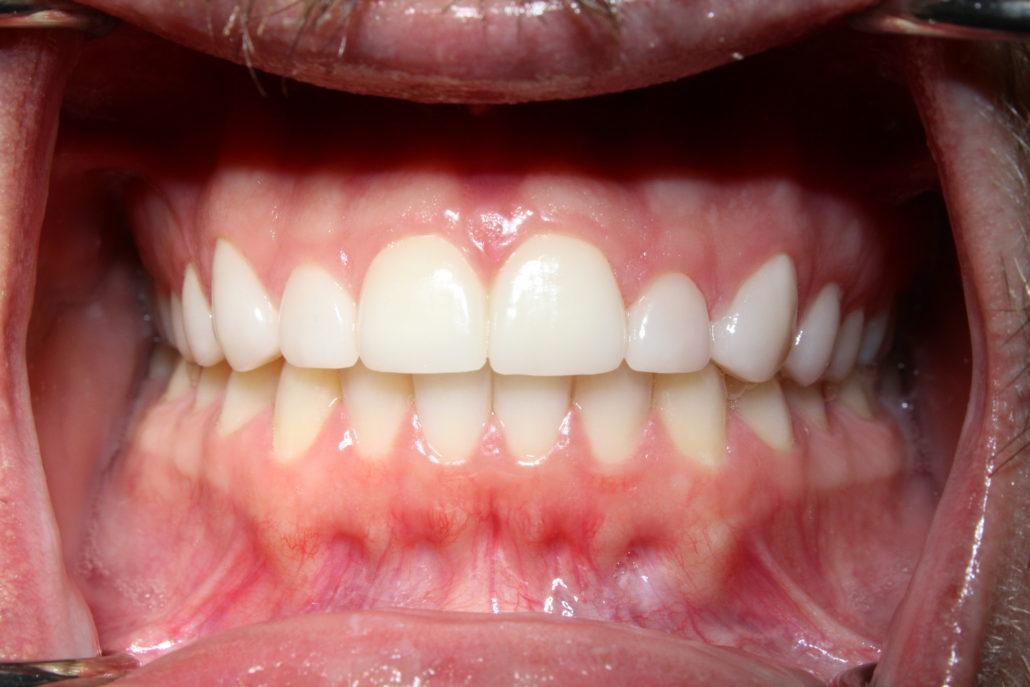 Cosmetic dentistry Tulsa, Porcelain dental veneers