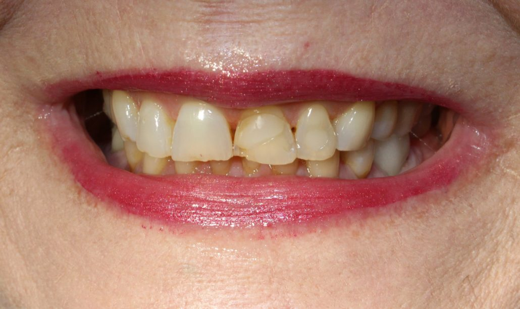 Porcelain crowns, Cosmetic dentist near me