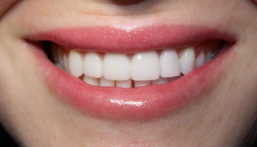 Cosmetic dentistry near me, Veneer dentist