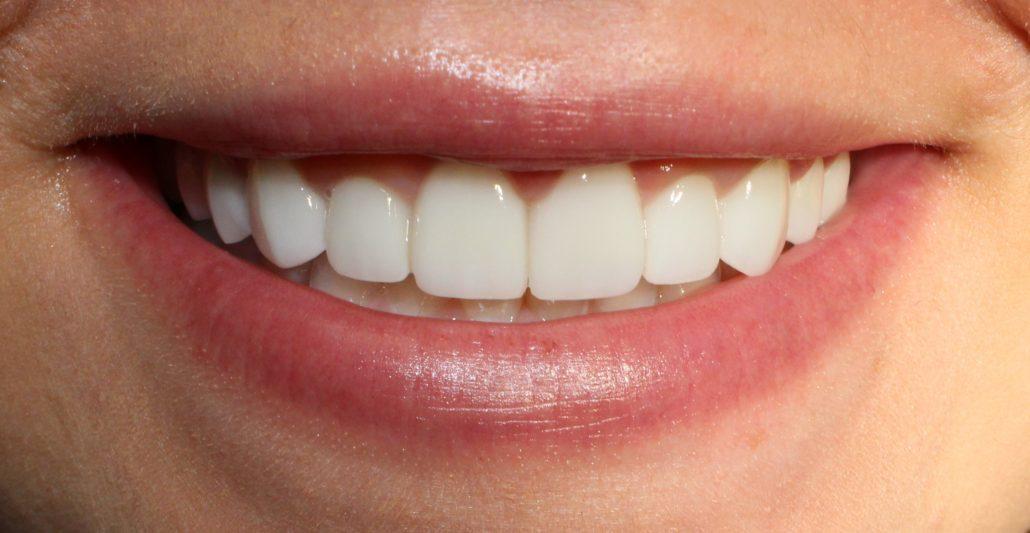 Tulsa cosmetic dentist, Veneer dentist