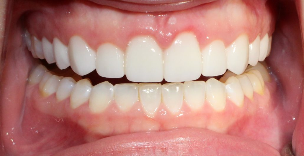 Cosmetic dentists near me, Dental veneers in Tulsa