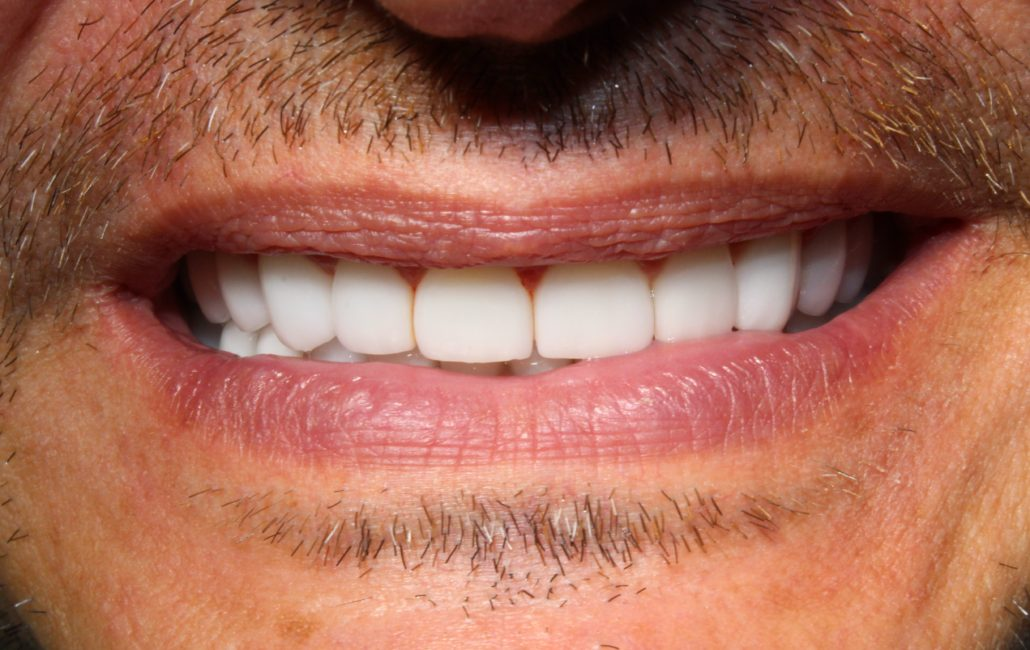 Cosmetic dentistry Tulsa, Family and cosmetic dentistry