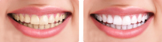 teethwhite1
