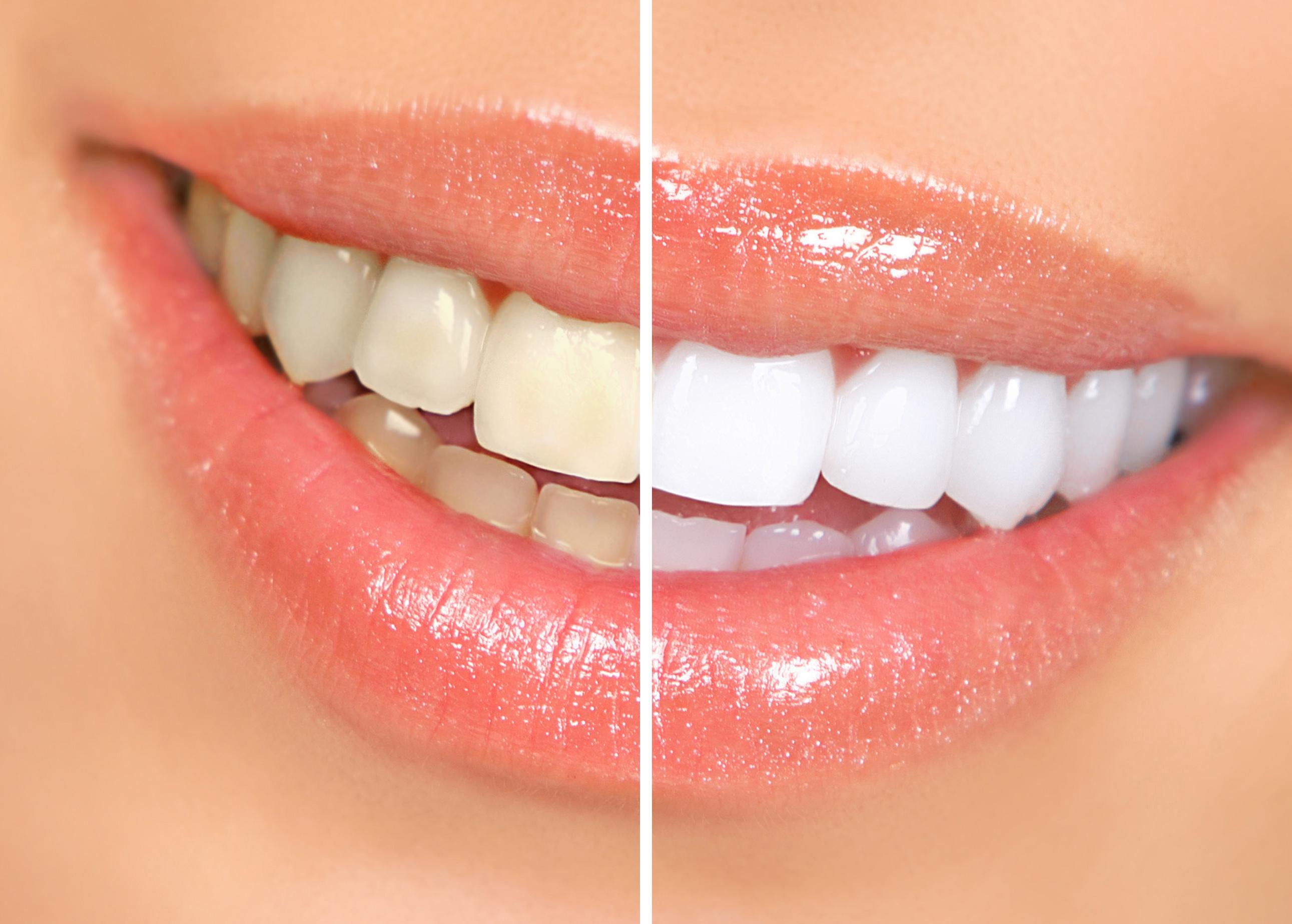 dentist tulsa